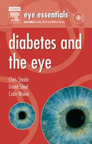 Diabetes and the eye by Steele, Chris FCOptom.